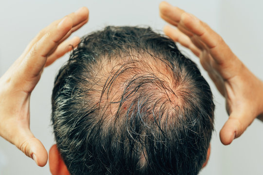 Mesotherapy of hair and head. Traces of injections on the head after therapy. Male pattern baldness. Fighting hair loss in men. Men's bald head at the top.
