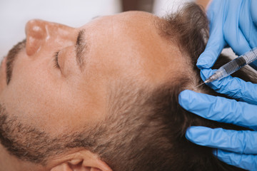 Mature balding man getting hairloss treatment at beauty clinic. Beautician doing scalp injections to a male client with alopecia. Hair care, revitalization concept