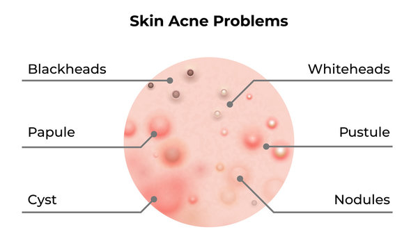 Skin acne types diagram. Vector skin problems disease, pimples blackheads and comedones, cosmetology and skincare treatment