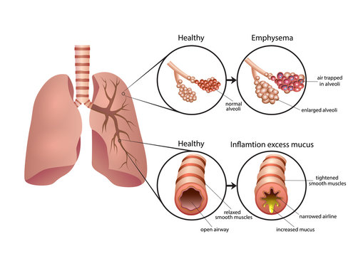 Chronic Obstructive Pulmonary Disease illustration