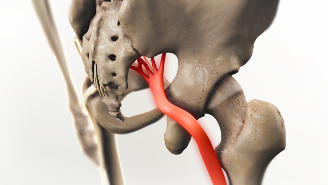 Sciatic Pinched Nerve Illustration