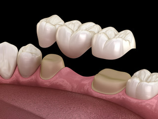 Dental bridge of 3 teeth over molar and premolar. Medically accurate 3D illustration of human teeth treatment Fotomurales
