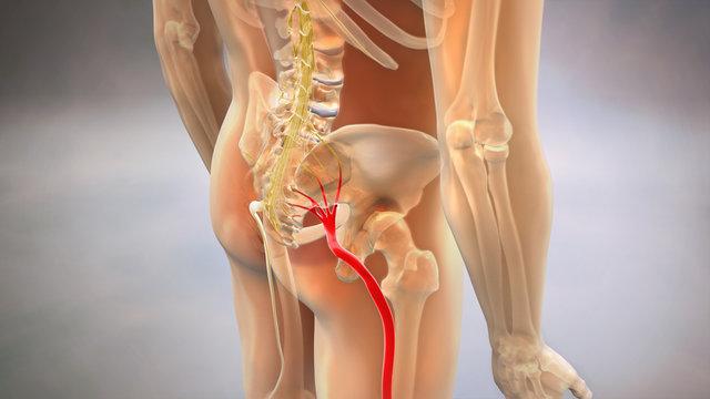 Sciatic Pinched Nerve 3D Render