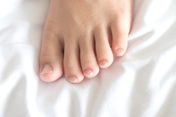 Foot of female Asia young adult with red spot as suffer from feet diseases