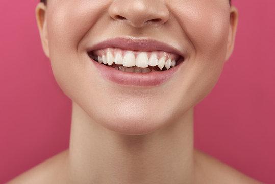Joyful young woman demonstrating her white healthy teeth