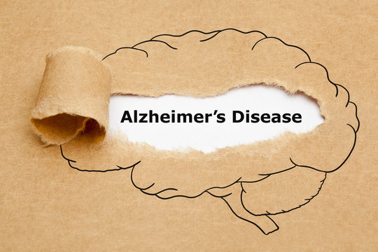 Alzheimers Disease Ripped Paper Concept