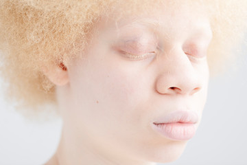 Portrait of albino girl with close eyes
