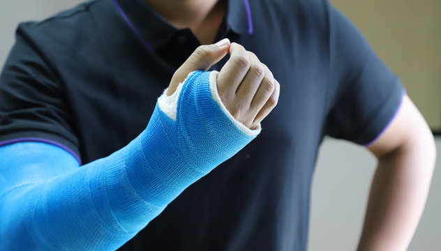 Closeup of Asian man's arm with long arm plaster, fiberglass cast therapy cover by blue elastic bandage after sport injury.