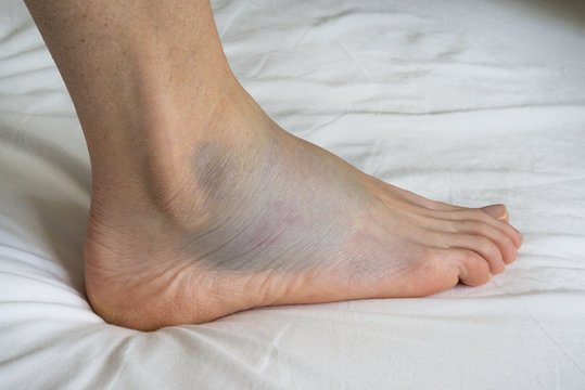 Sprained ankle with bruise adn swelling, female right foot