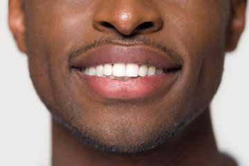 Close up african male having ultra white toothy smile