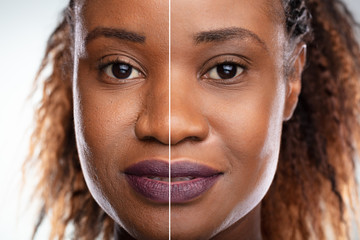 Woman's Face Before And After Cosmetic Procedure