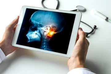 Doctor watching a x-ray of pain on a neck of a skull on digital tablet. Meningitis migraine headache and radiology concept