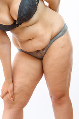 young overweighted woman in lingerie on white isolated background squeezes fat on legs . concept for medicine and cosmetology