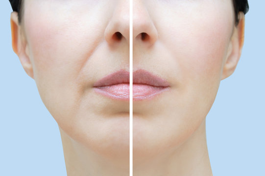 Nasolabial folds in a Caucasian woman. Face close up. Before and after.