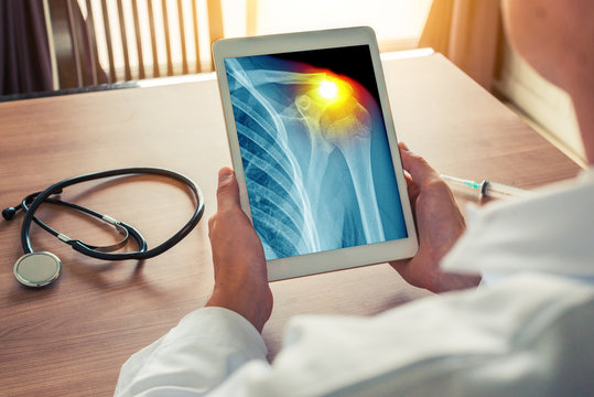 Doctor holding a digital tablet with x-ray of chest with pain on the shoulder. Stethoscope and syringe on the desk