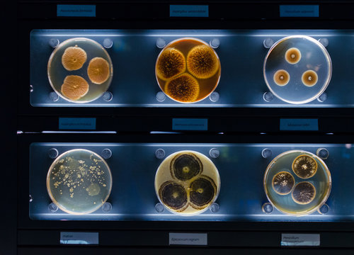 different samples with kinds of bacterias living at common household items- mattress, shoe, moisturizer.
