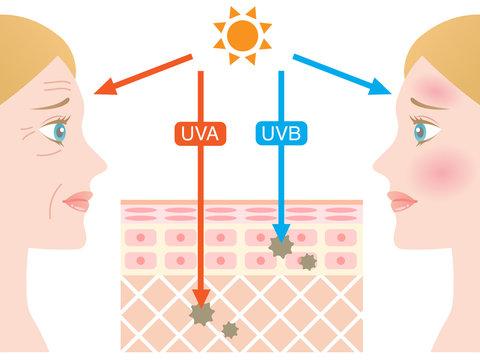 紫外線 肌の構造 白人女性