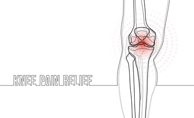 White horizontal continuous line drawing concept banner about knee pain relief. Wall mural