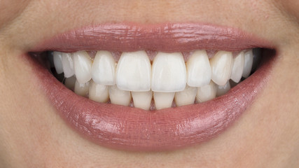 beautiful smiling girl with veneers close-up