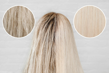 Sick, cut and healthy hair care keratin. Before and after treatment dandruff