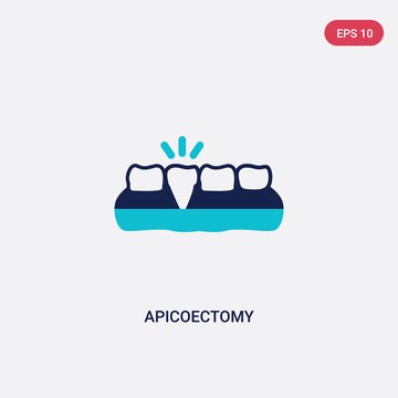 two color apicoectomy vector icon from dentist concept. isolated blue apicoectomy vector sign symbol can be use for web, mobile and logo. eps 10