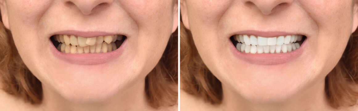 Teeth of a woman before and after correction and whitening