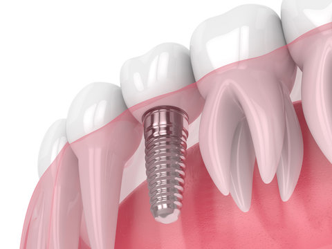 3d render of jaw with dental implant