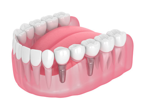 3d render of jaw with implants supported dental bridge