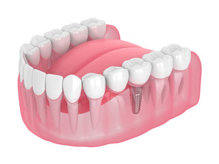 3d render of jaw with implant supported dental cantilever bridge
