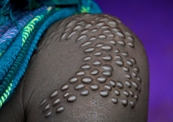 Details of scarifications on a suri tribe woman shoulder, Kibish, Omo valley, Ethiopia
