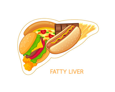 Unhealthy food in shape of liver. Fatty liver awareness concept.  Vector illustration isolated on white background.