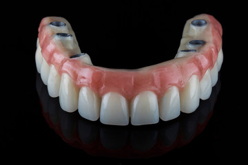 Dental upper jaw prosthesis with fixation on six implants, shot on a black background