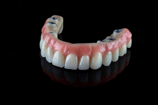 realistic dental permanent upper jaw prosthesis for a 50-year-old patient on a black background