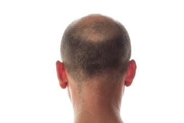 Bald man head on the back