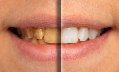 A close-up and split view on the mouth of a young Caucasian adult, before and after of cosmetic dentistry whitening procedure, where the teeth are bleached to remove stains.