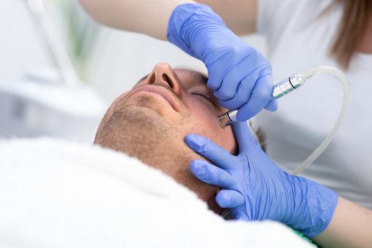 Man on lifting laser rejuvenation face at beauty salon
