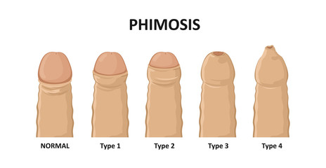 Types of phimosis. Vector illustration