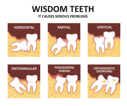 Wisdom tooth. Possible problems because of the third molar