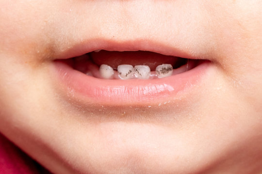 An extreme close-up view on the slightly open mouth of an infant, showing baby incisors with black marks. Tooth decay and childhood dentistry.