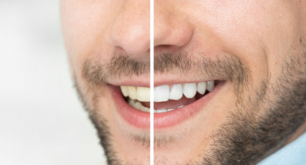 Dental care and whitening teeth compare