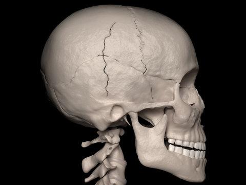 Contiguous Cranial Vault fracture of the Temporal-and Parietal bone (cranial fracture)
