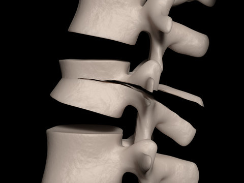 Chance (Seat belt injury) fracture of the L2 vertebra (lumbar fracture)