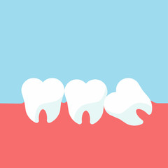 Teeth and gum problems. Impacted wisdom tooth for dentistry and dental surgery in flat style vector illustration