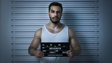 In a Police Station Arrested Beaten Man Poses for Front View Mugshot. He Wears Singlet, is Heavily Bruised and Holds Placard. Height Chart in the Background. Shot with Dark Cold Lights Vignette Filter