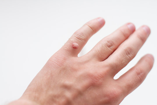 wart on a finger on a white background
