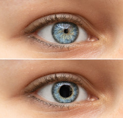 Keuken foto achterwand Iris A closeup view on the blue eyes of a pretty young woman. Collage comparing the black pupil, one image shows an enlarged pupil and one shows a reduced pupil. Pupillary light reflex in humans.