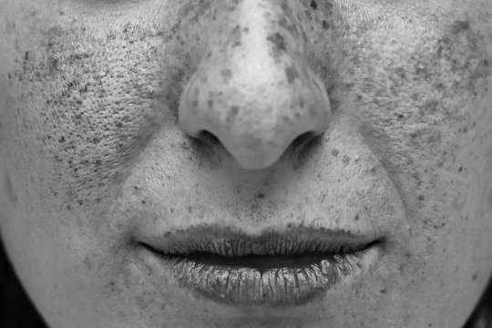 A close up view of a woman's face. UV light on the cheeks, nose and lips. Showing damage and imperfections caused from spending too much time in direct sunlight.