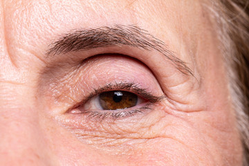 wrinkles under eye before and after botox treatment - Buy