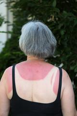 Ältere Frau mit einen starken Sonnenbrand auf dem Rücken