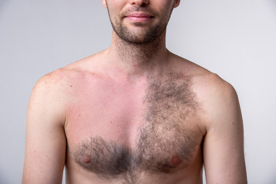 Handsome man with a lot of hair on one side of the chest and another part of the breast after waxing